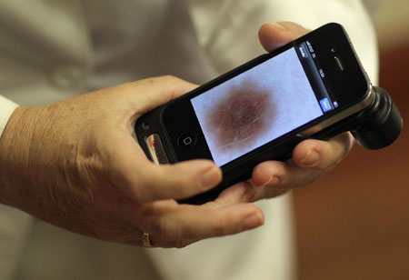 AI can Detect Skin Cancer