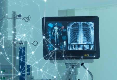 Thirona Develops Novel AI Software for Cystic Fibrosis