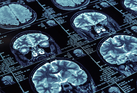 Opening New Artificial Intelligence Opportunities in Medical Imaging
