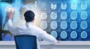 How is AI Changing Medical Imaging