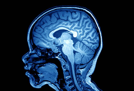 Using Machine Learning, More Information can be Extracted from One Brain Scan!